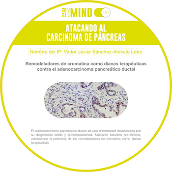 atacando al carcinoma de pancreas 1 Mind on